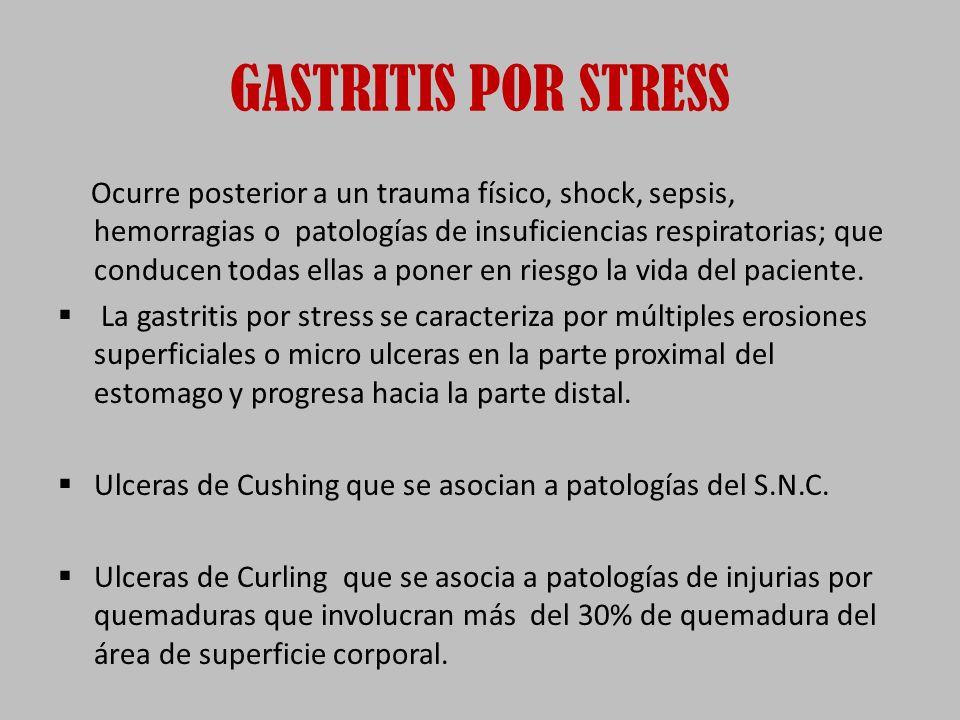 GASTRITIS POR STRESS