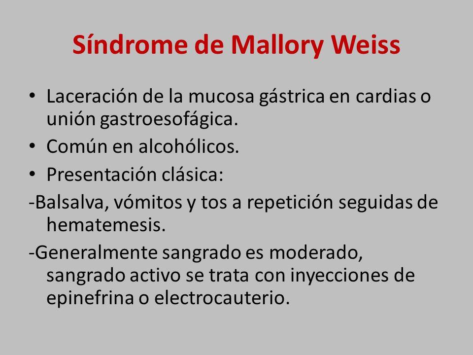 Síndrome de Mallory Weiss