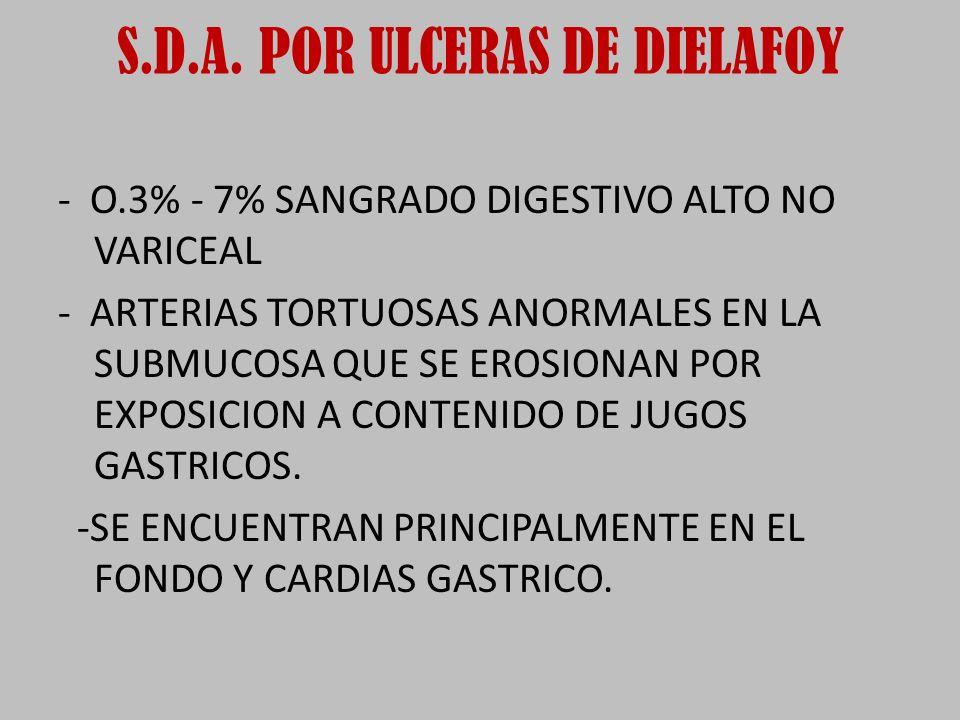 S.D.A. POR ULCERAS DE DIELAFOY
