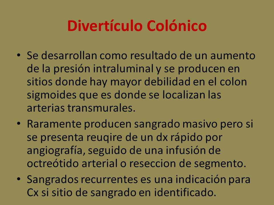 Divertículo Colónico
