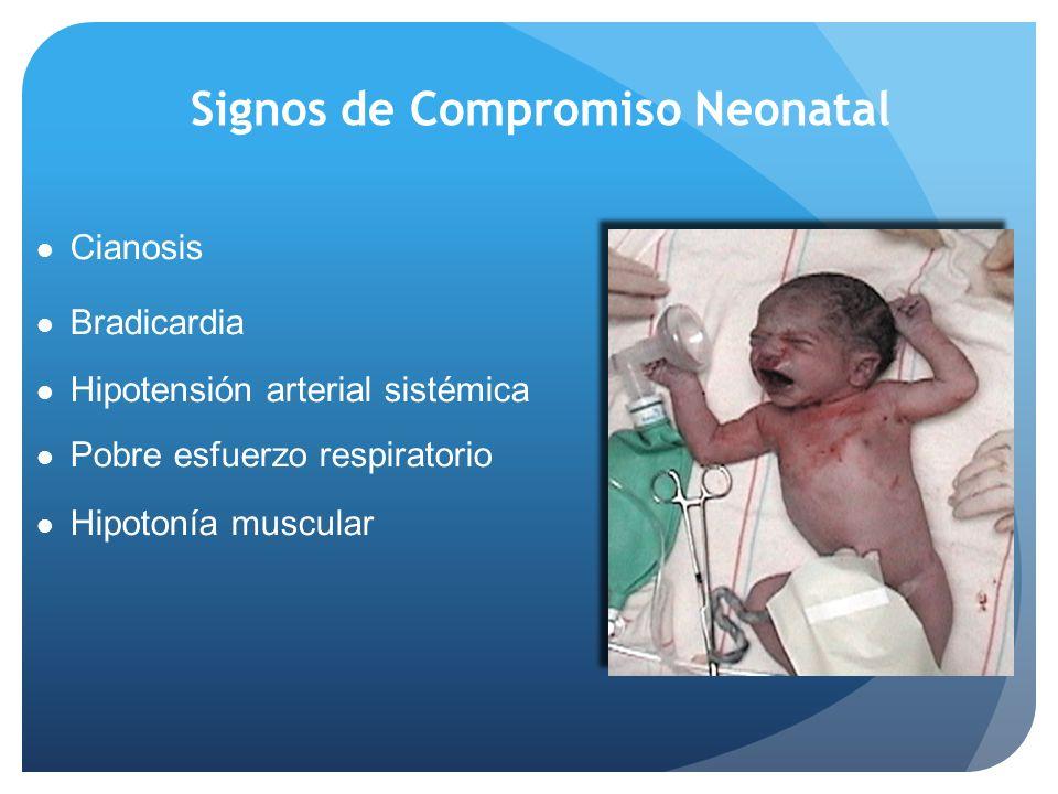 Signos de Compromiso Neonatal