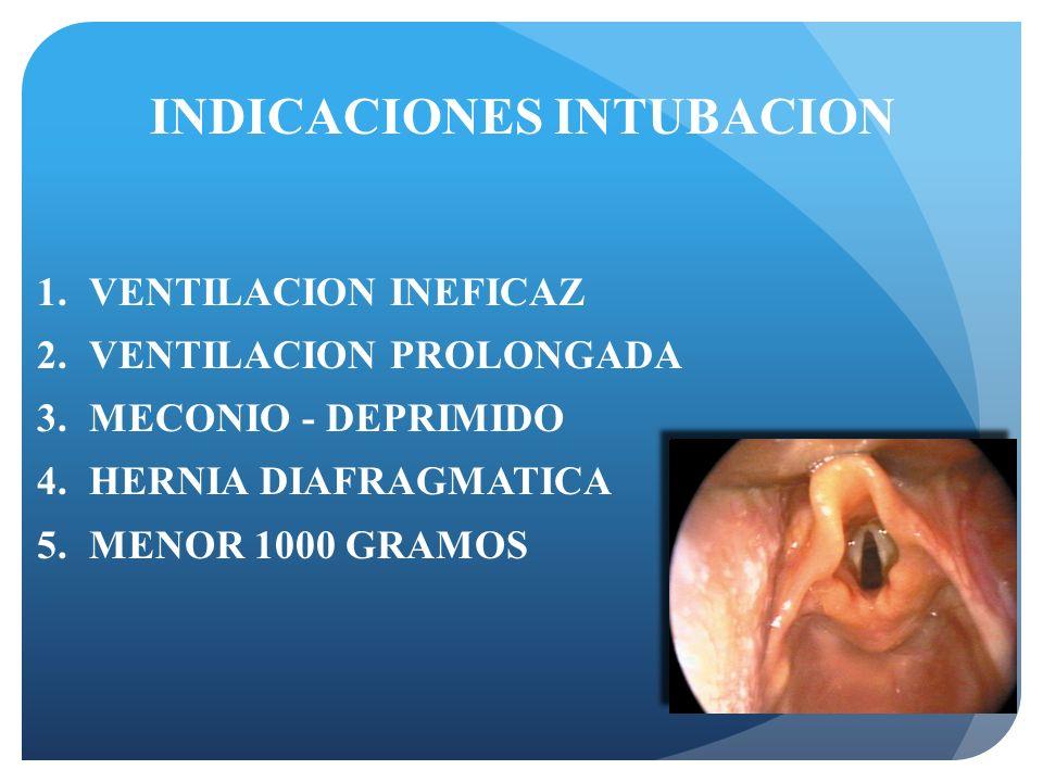 INDICACIONES INTUBACION