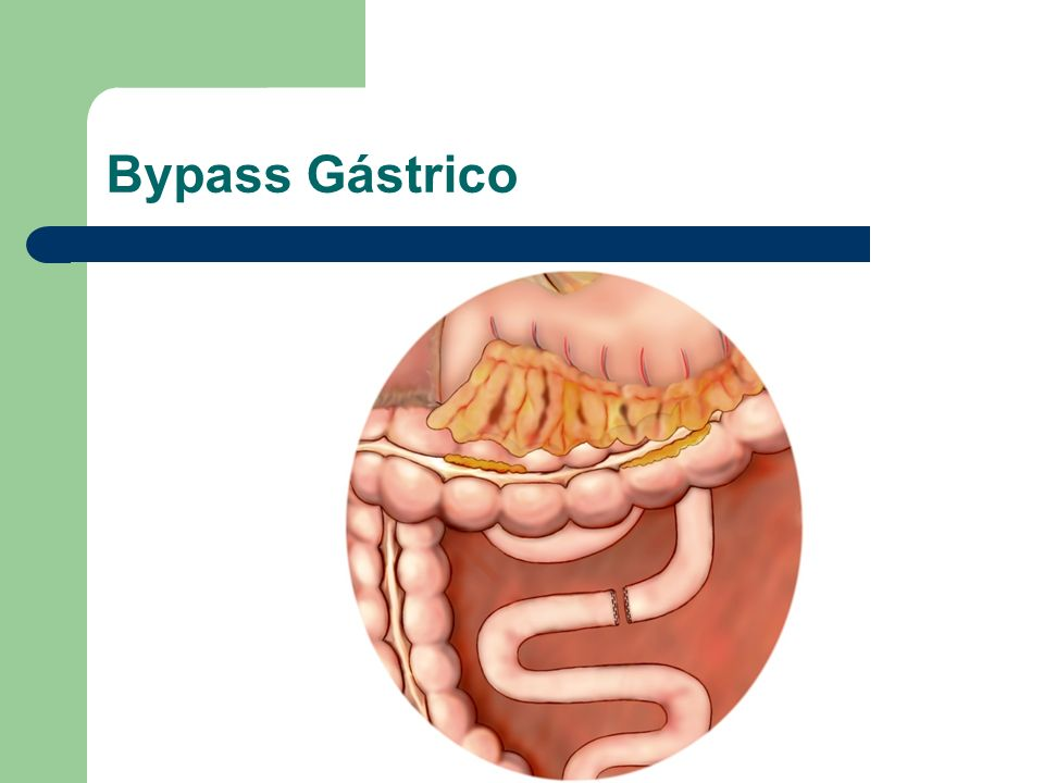 Bypass Gástrico