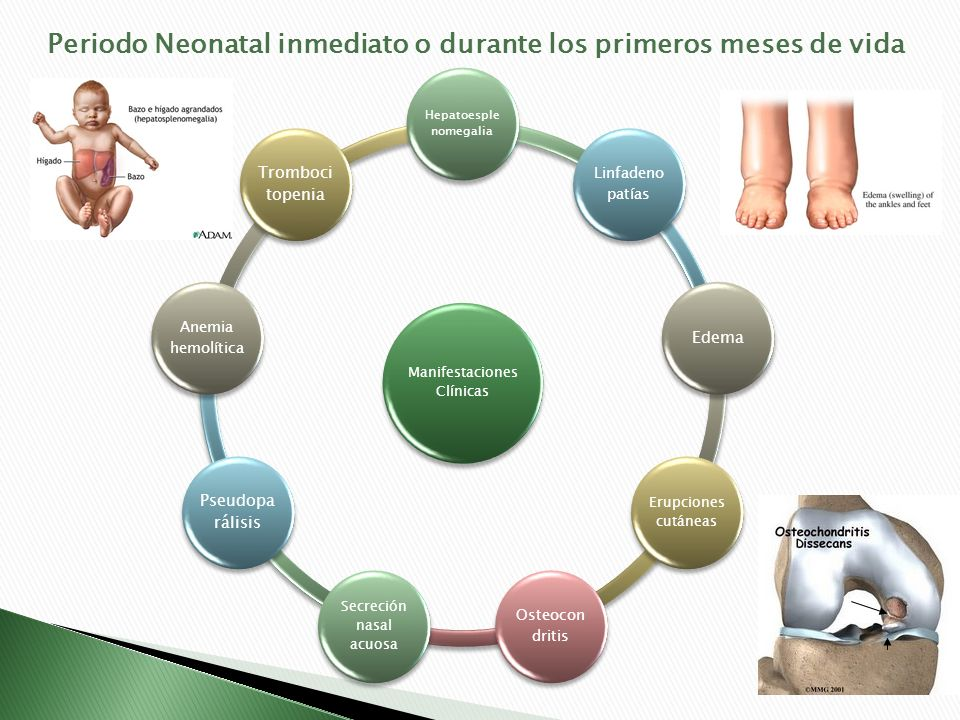 Periodo Neonatal inmediato o durante los primeros meses de vida