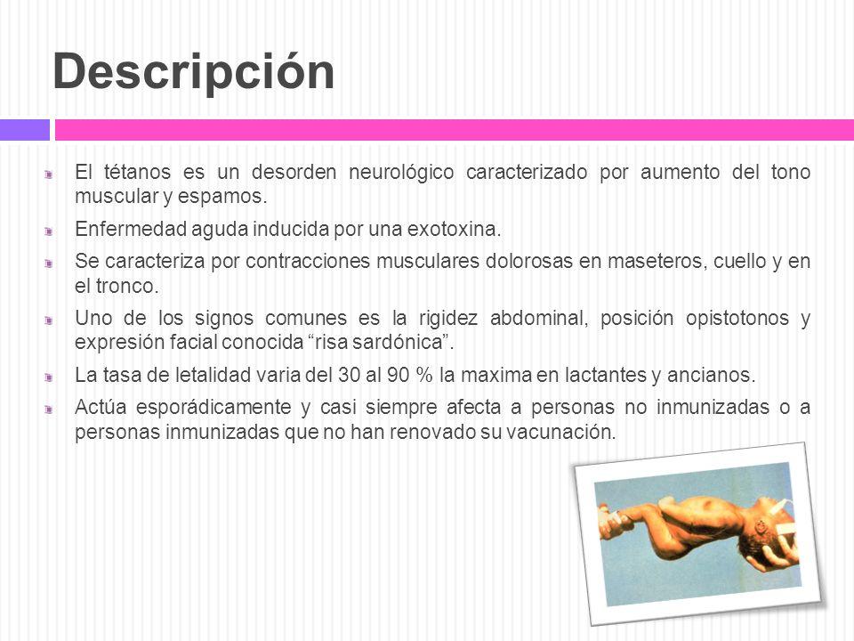 Descripción El tétanos es un desorden neurológico caracterizado por aumento del tono muscular y espamos.