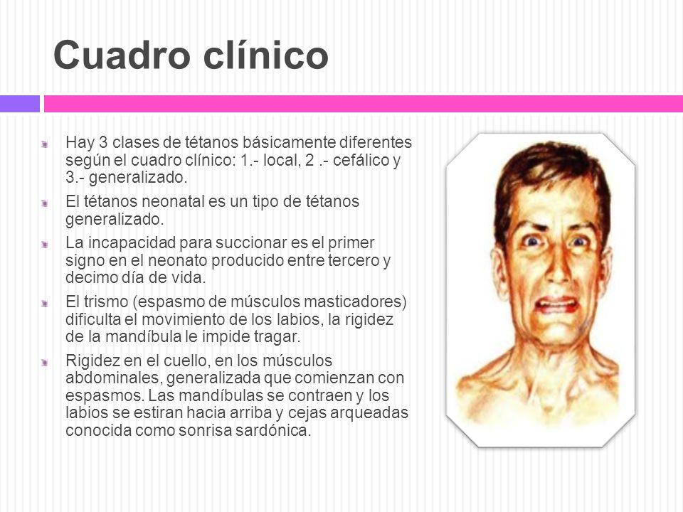 Cuadro clínico Hay 3 clases de tétanos básicamente diferentes según el cuadro clínico: 1.- local, 2 .- cefálico y 3.- generalizado.
