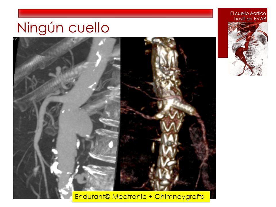 Ningún cuello Endurant® Medtronic + Chimneygrafts El cuello Aortico