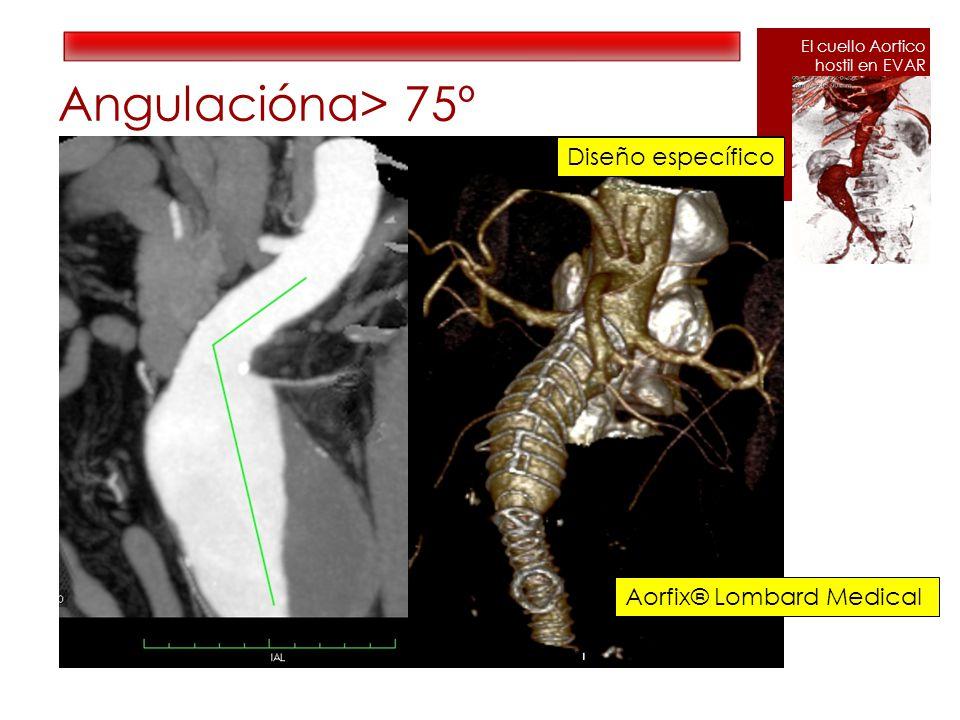 Angulaciónα> 75º Diseño específico Aorfix® Lombard Medical