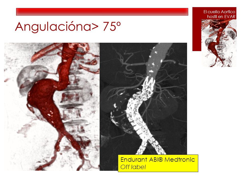 Angulaciónα> 75º Endurant ABI® Medtronic Off label