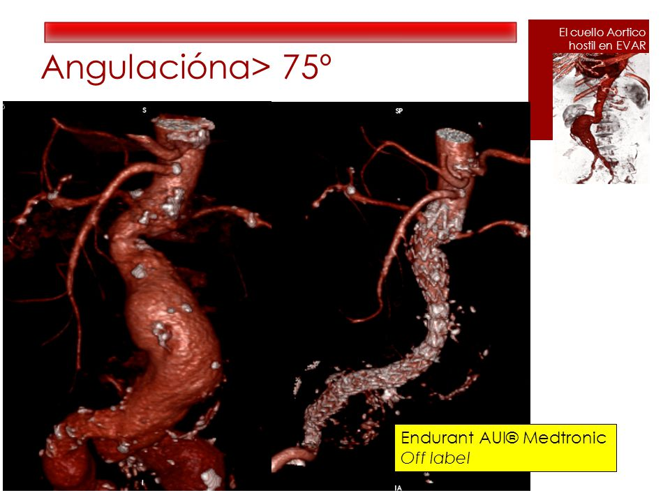 Angulaciónα> 75º Endurant AUI® Medtronic Off label