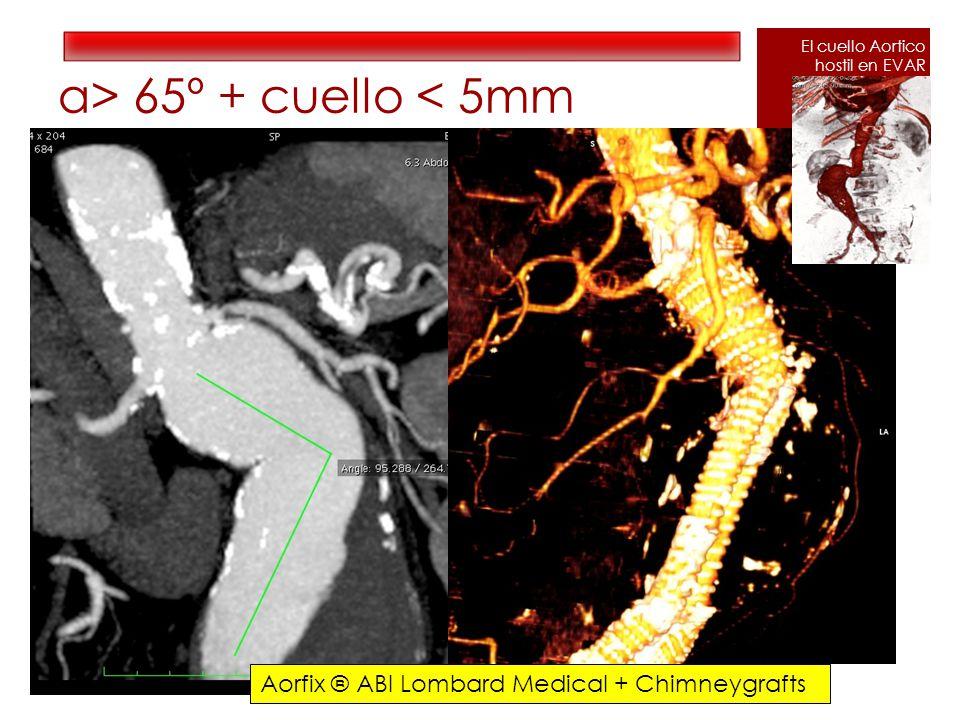 α> 65º + cuello < 5mm El cuello Aortico hostil en EVAR Aorfix ® ABI Lombard Medical + Chimneygrafts