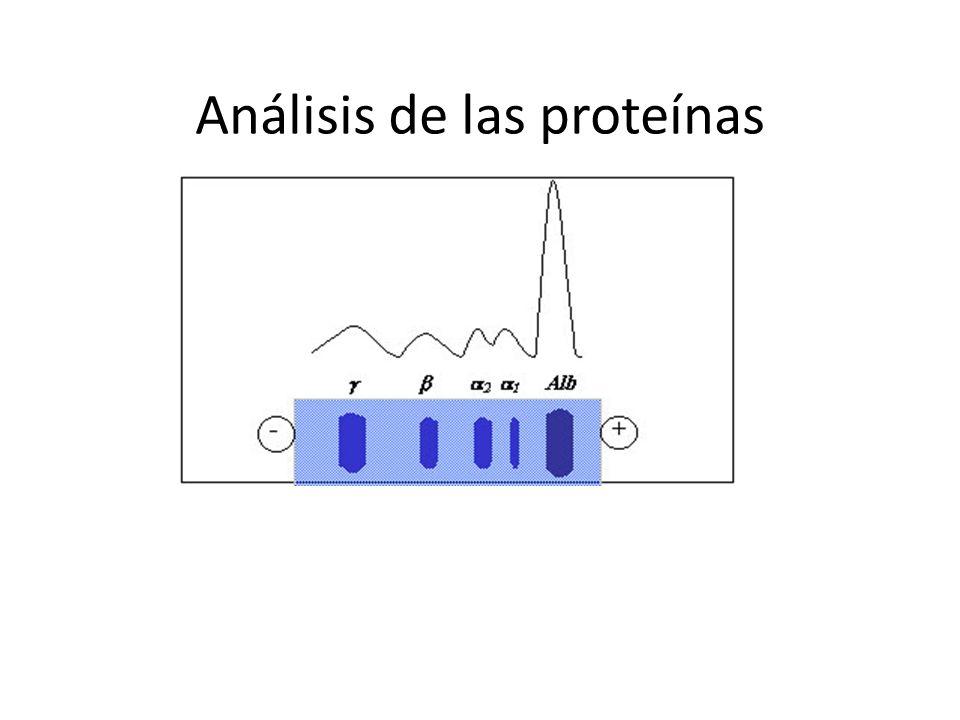Análisis de las proteínas