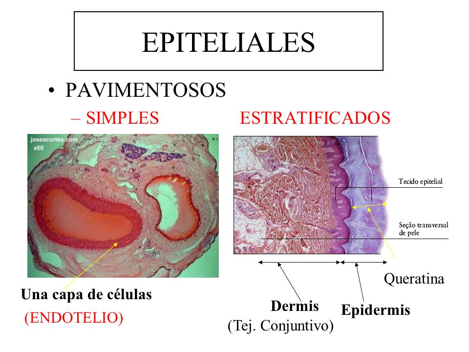 EPITELIALES PAVIMENTOSOS SIMPLES ESTRATIFICADOS Queratina