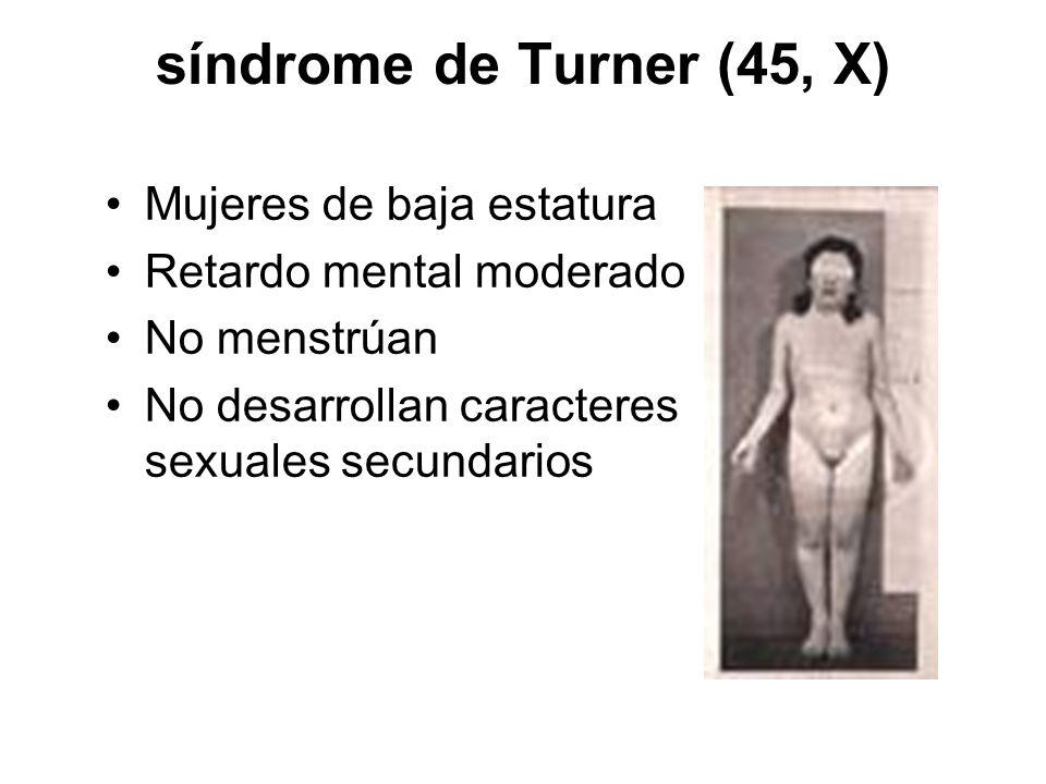 síndrome de Turner (45, X) Mujeres de baja estatura