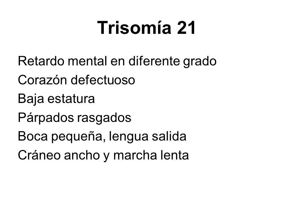 Trisomía 21 Retardo mental en diferente grado Corazón defectuoso