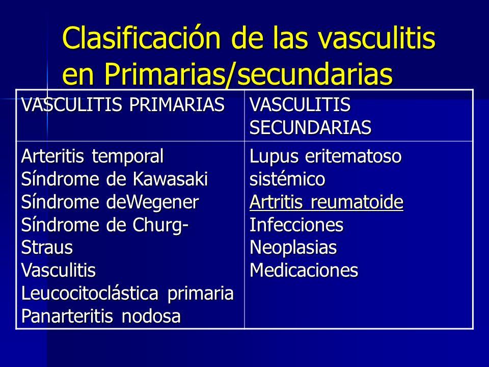 Clasificación de las vasculitis en Primarias/secundarias