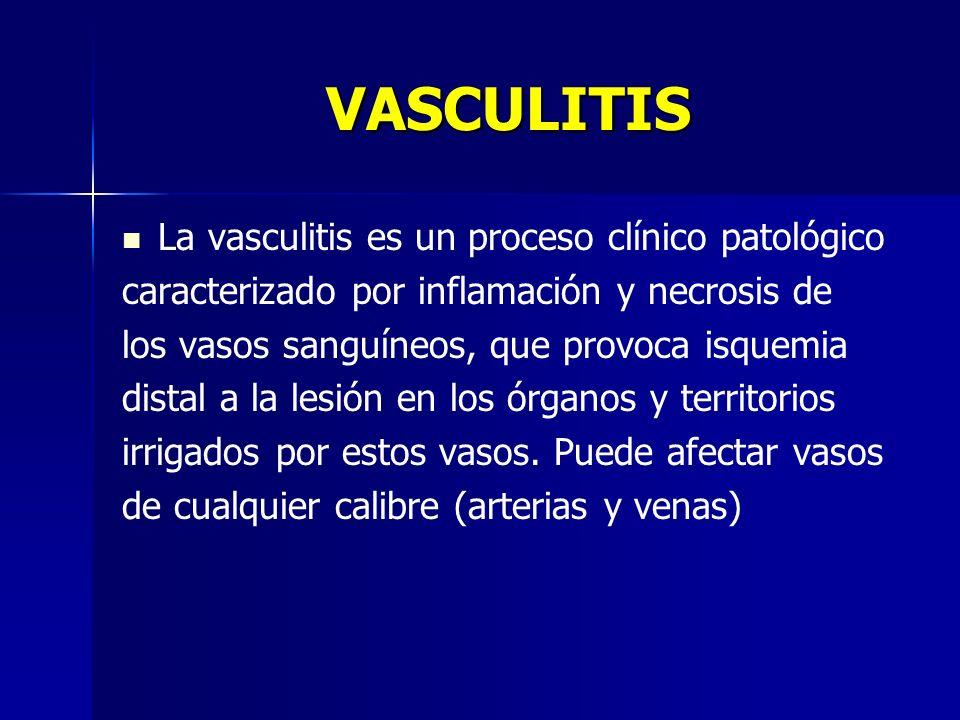 VASCULITIS La vasculitis es un proceso clínico patológico