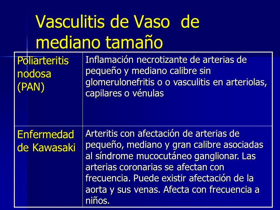 Vasculitis de Vaso de mediano tamaño
