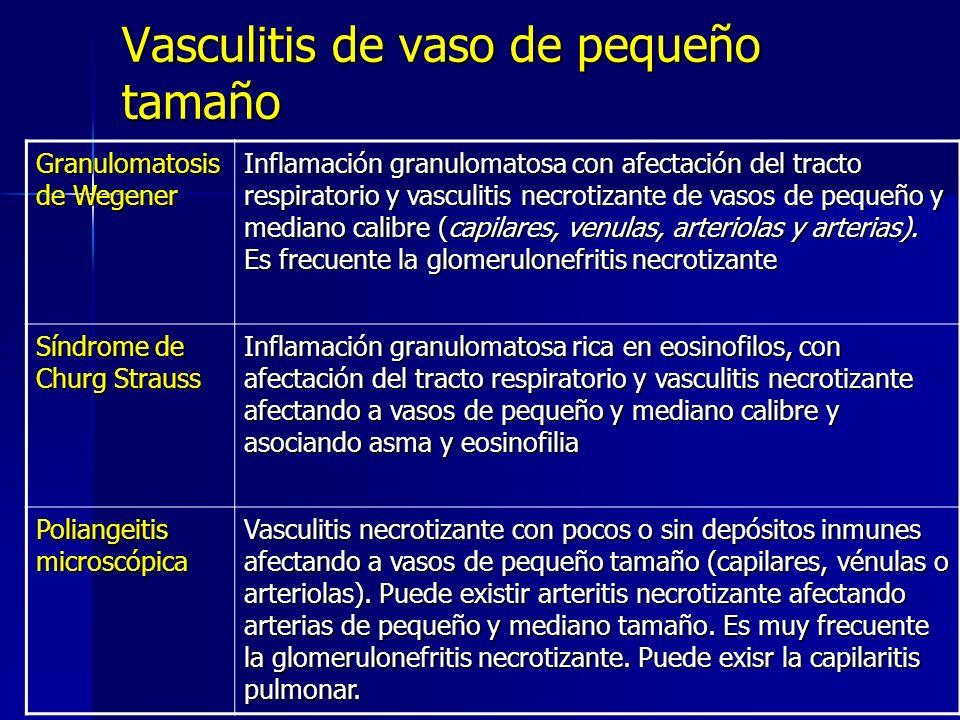Vasculitis de vaso de pequeño tamaño