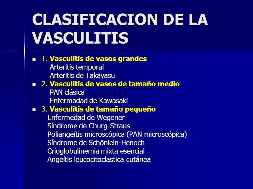 CLASIFICACION DE LA VASCULITIS