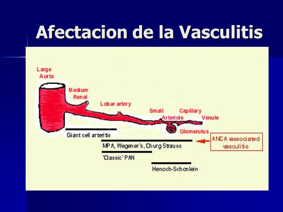 Afectacion de la Vasculitis
