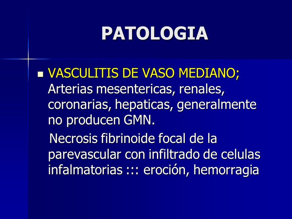 PATOLOGIAVASCULITIS DE VASO MEDIANO; Arterias mesentericas, renales, coronarias, hepaticas, generalmente no producen GMN.
