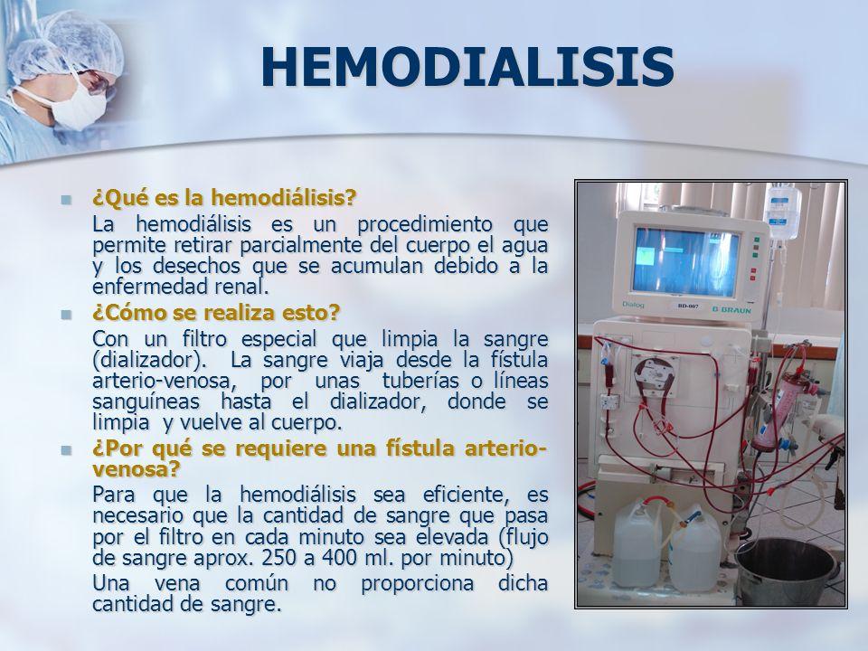 HEMODIALISIS ¿Qué es la hemodiálisis