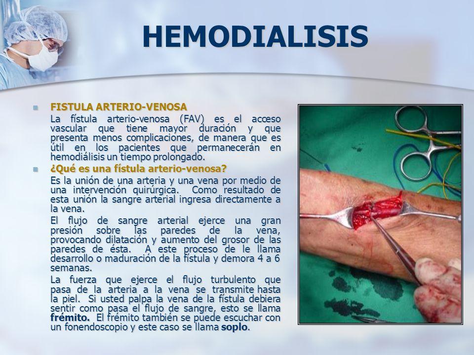 HEMODIALISIS FISTULA ARTERIO-VENOSA