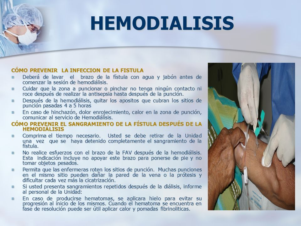 HEMODIALISIS CÓMO PREVENIR LA INFECCION DE LA FISTULA