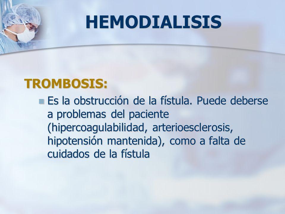 HEMODIALISIS TROMBOSIS: