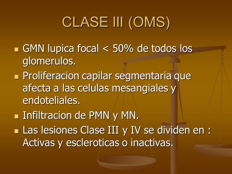 CLASE III (OMS) GMN lupica focal < 50% de todos los glomerulos.