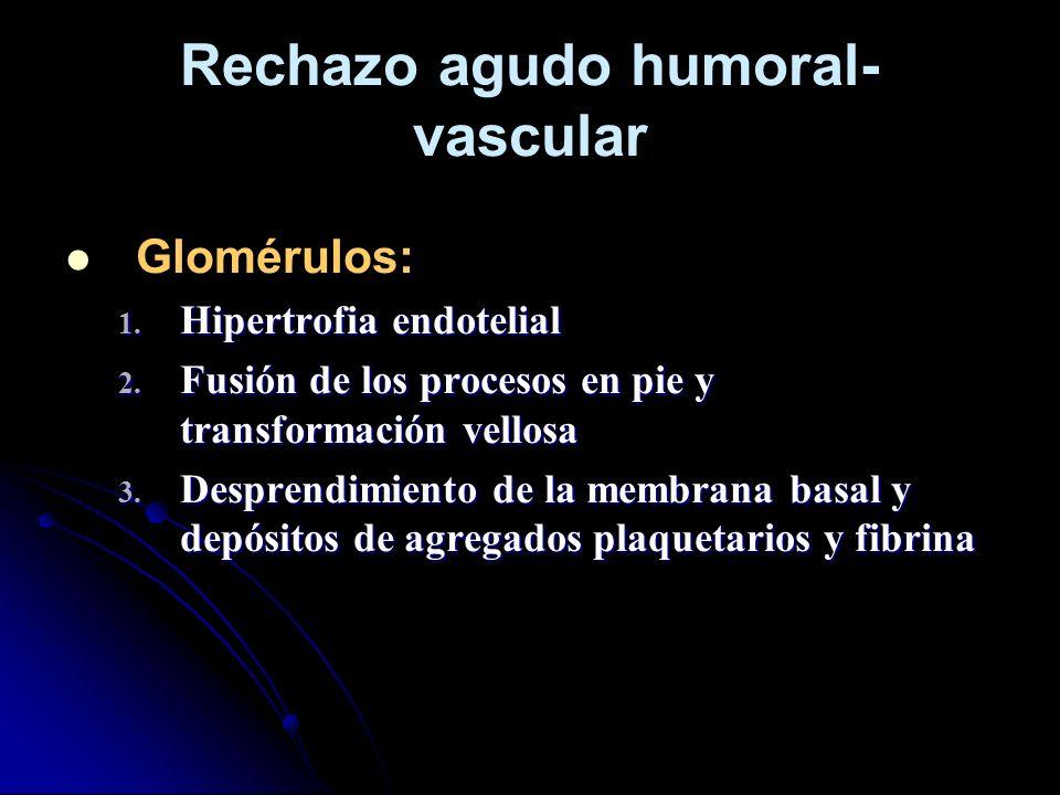 Rechazo agudo humoral-vascular