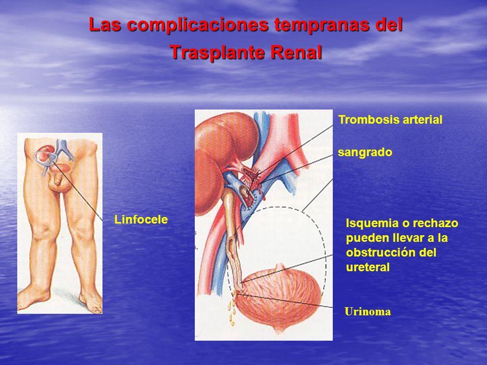 Las complicaciones tempranas del Trasplante Renal