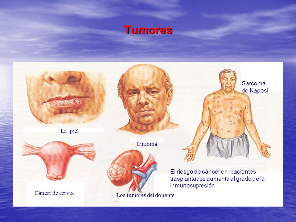 Tumores Sarcoma de Kaposi La piel Linfoma