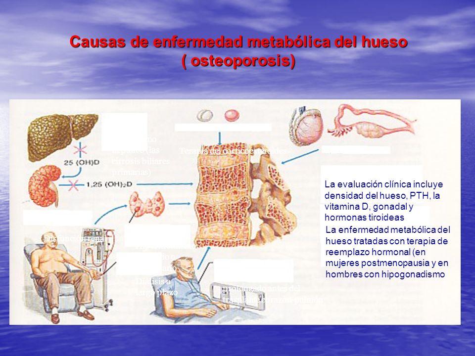 Causas de enfermedad metabólica del hueso ( osteoporosis)