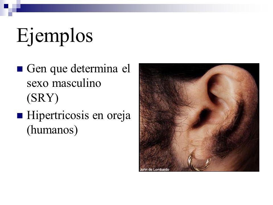 Ejemplos Gen que determina el sexo masculino (SRY)