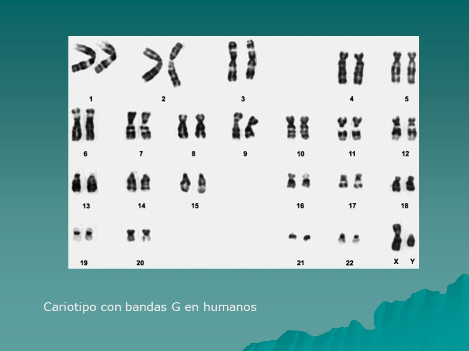Cariotipo con bandas G en humanos