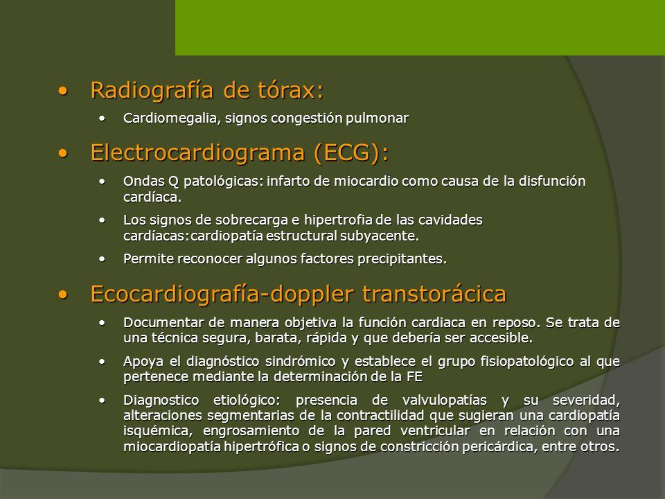 Electrocardiograma (ECG):