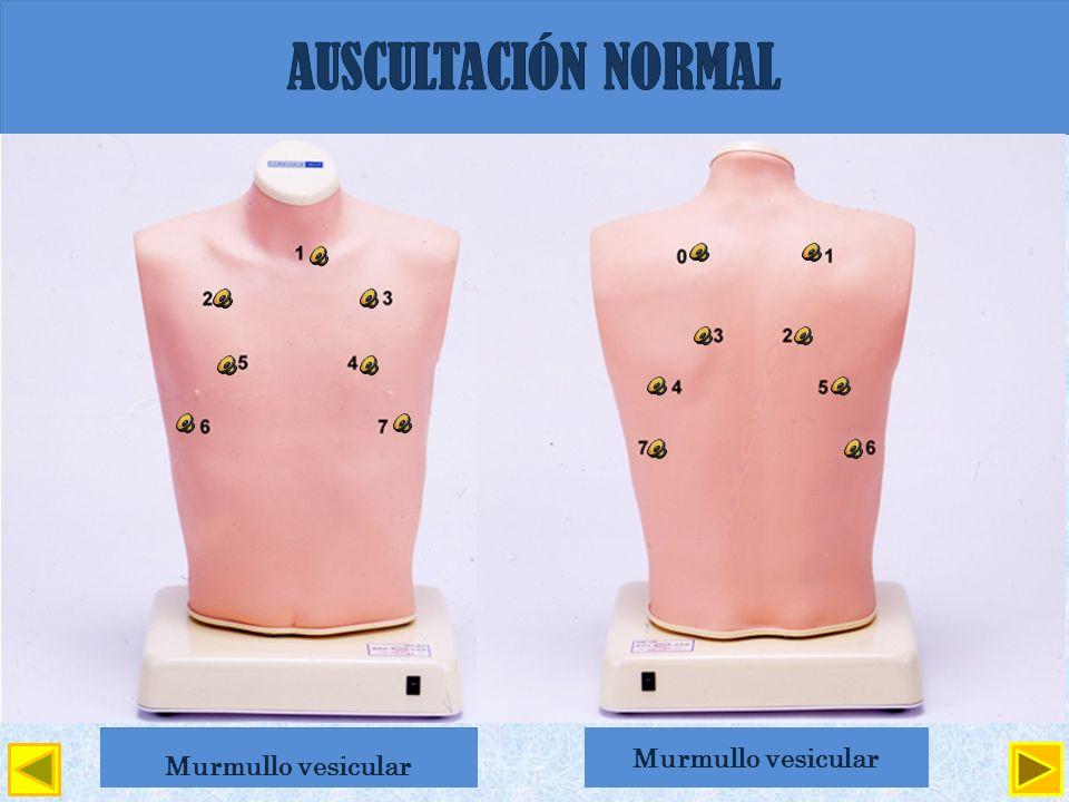 AUSCULTACIÓN NORMAL Sonido laringotraqueal Sonido traqueobronquial