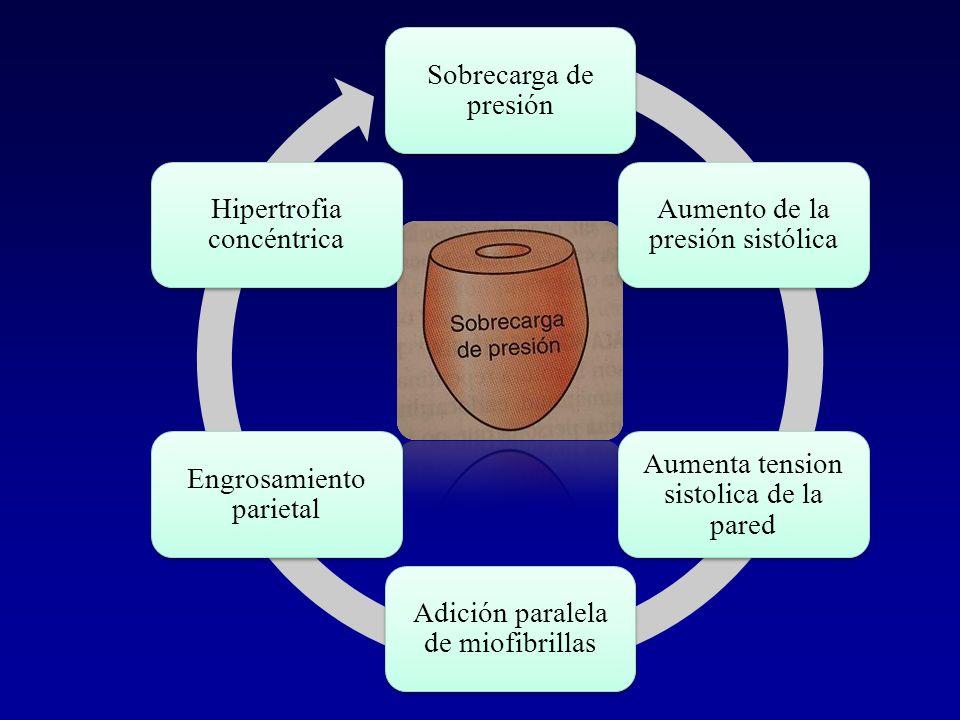 Sobrecarga de presiónAumento de la presión sistólica. Aumenta tension sistolica de la pared. Adición paralela de miofibrillas.