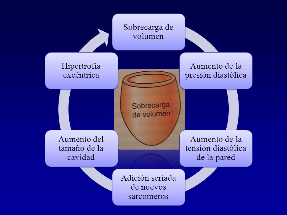 Sobrecarga de volumen Aumento de la presión diastólica. Aumento de la tensión diastólica de la pared.