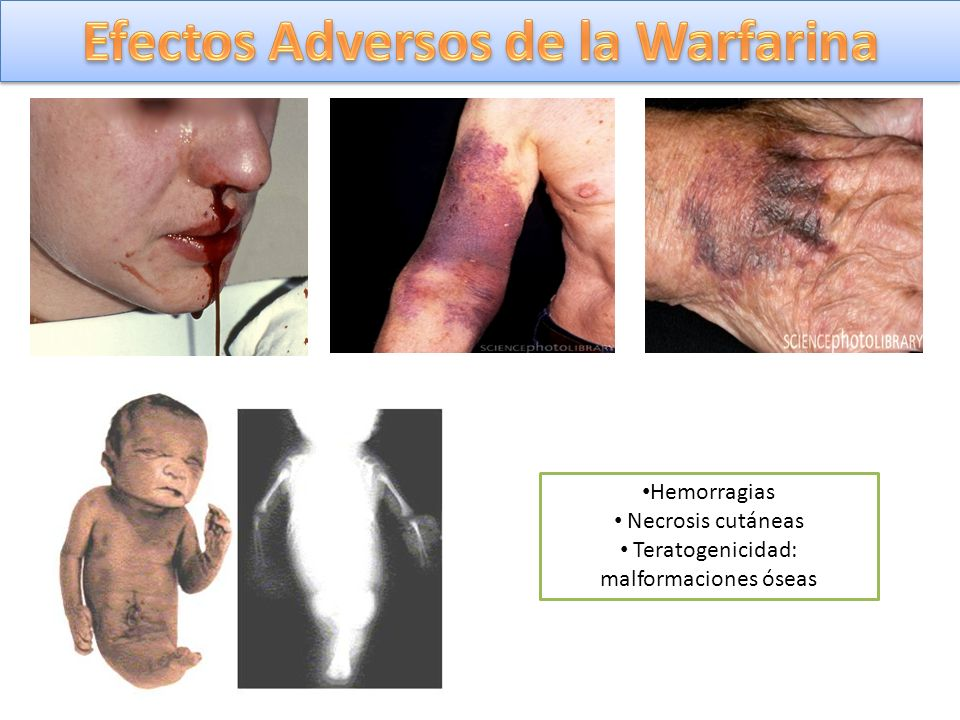 Efectos Adversos de la Warfarina