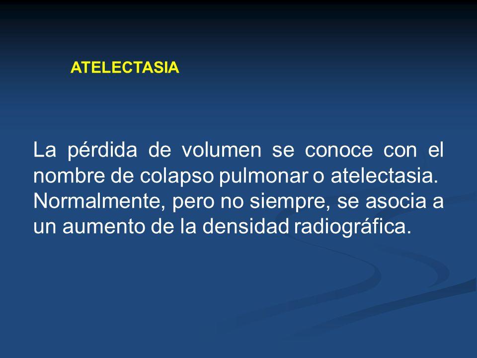 ATELECTASIALa pérdida de volumen se conoce con el nombre de colapso pulmonar o atelectasia.