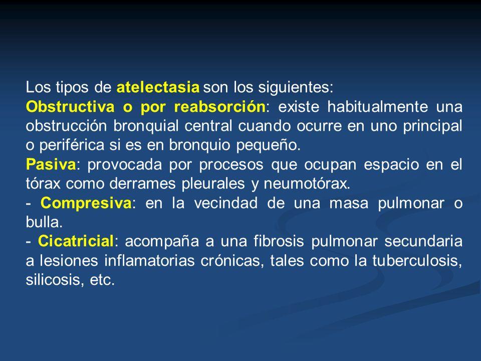 Los tipos de atelectasia son los siguientes: