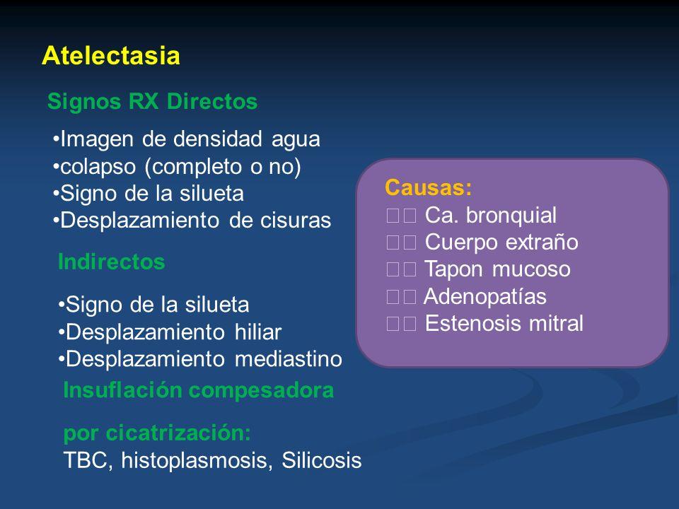 Atelectasia Signos RX Directos Imagen de densidad agua