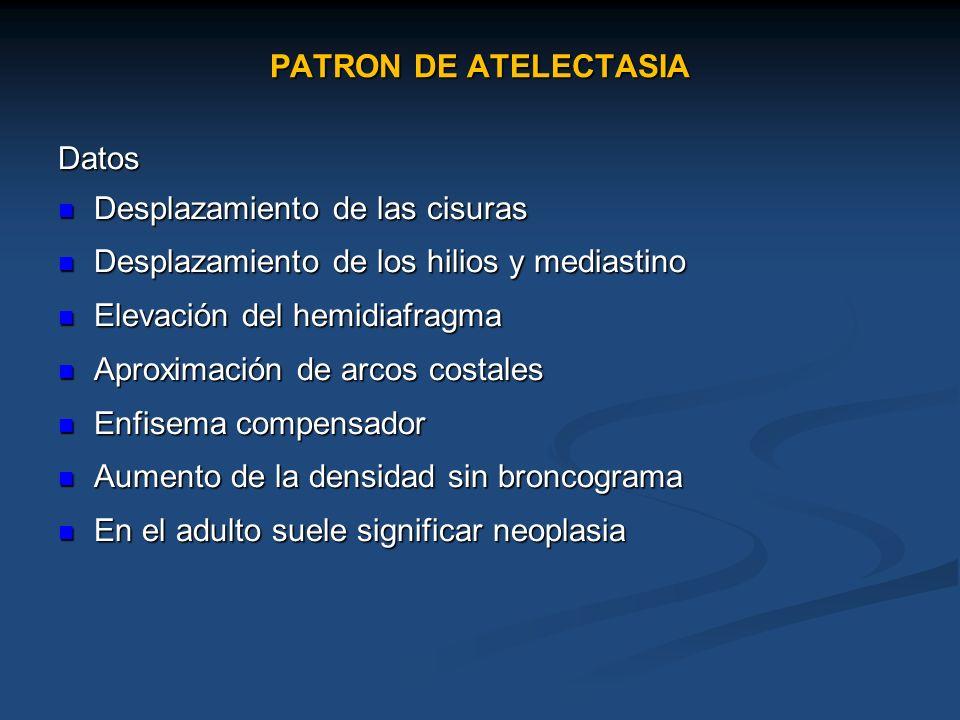 PATRON DE ATELECTASIA Datos. Desplazamiento de las cisuras. Desplazamiento de los hilios y mediastino.