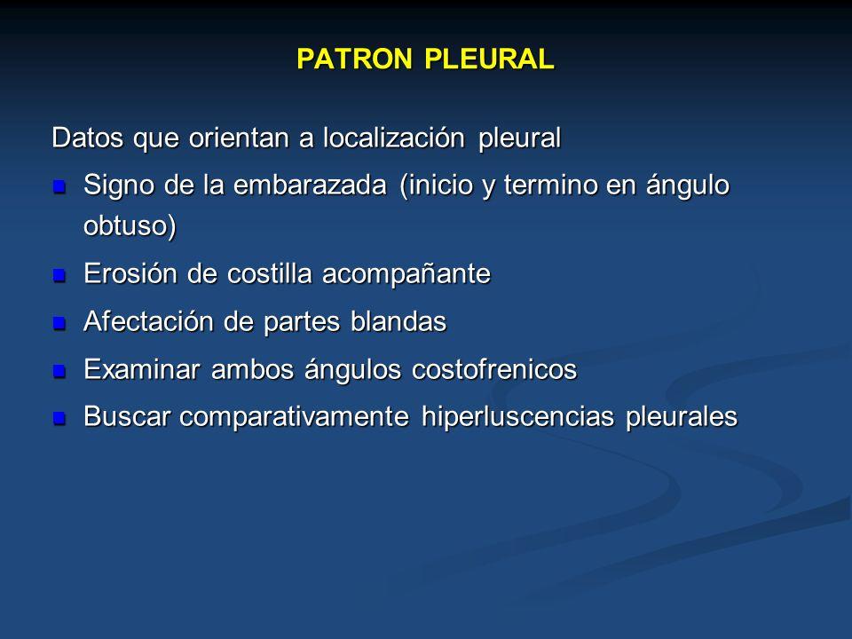 PATRON PLEURAL Datos que orientan a localización pleural. Signo de la embarazada (inicio y termino en ángulo obtuso)