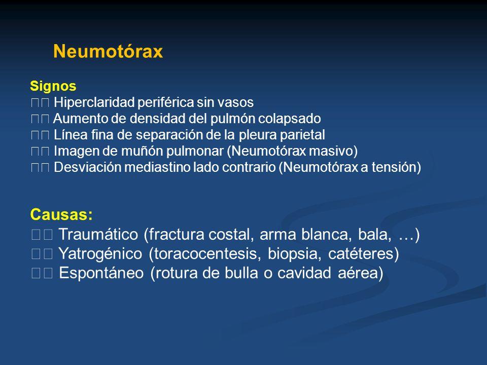 NeumotóraxSignos.  Hiperclaridad periférica sin vasos.  Aumento de densidad del pulmón colapsado.