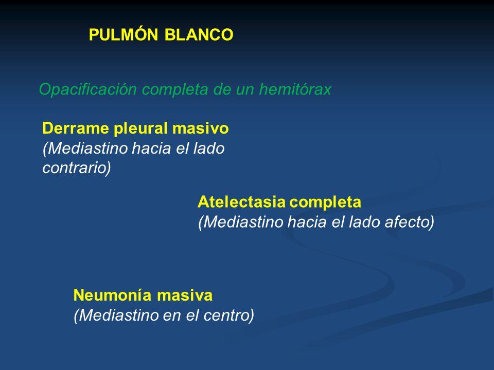 PULMÓN BLANCO Opacificación completa de un hemitórax. Derrame pleural masivo. (Mediastino hacia el lado contrario)