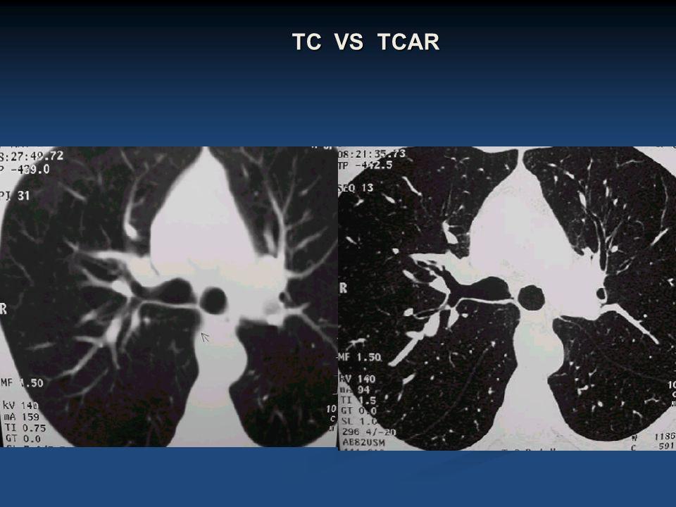 TC VS TCAR